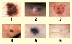 quiz to recognize the different forms of melanoma