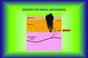 melanoma teacher video